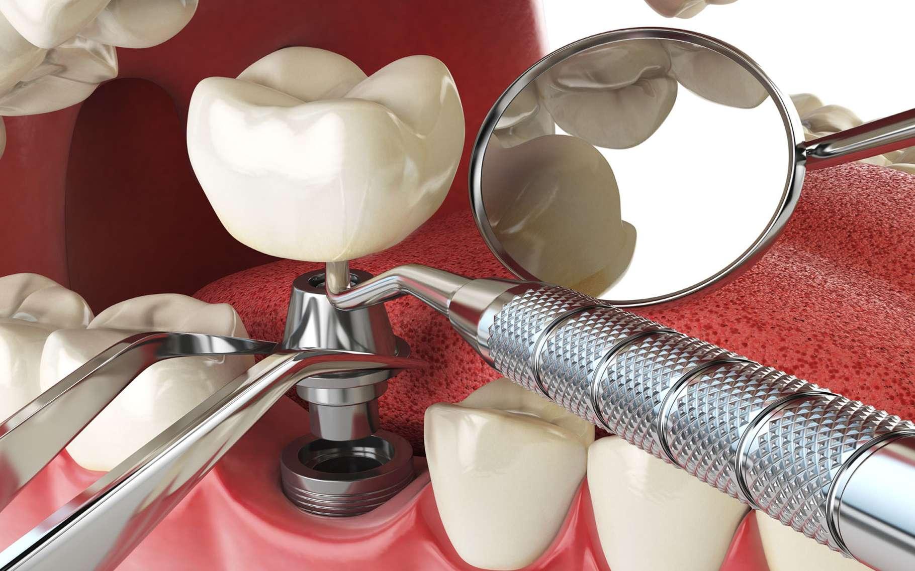 Implant dentaire : une dent déterminante ?